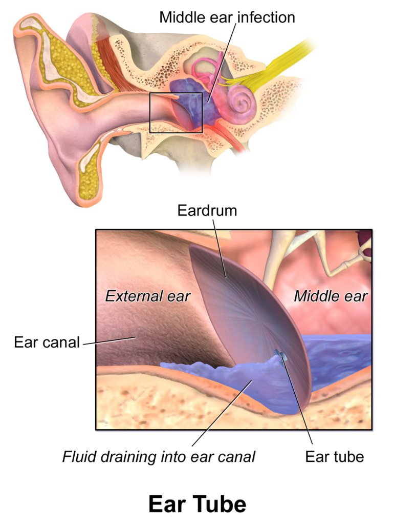 Artist drawing of this inner ear and ear tube, showing an ear infection and fluid draining in to ear canal